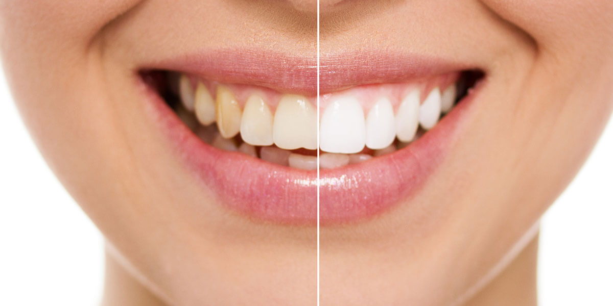Before & After Teeth Whitening in Kensington